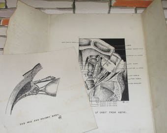 Vintage 1935 Hand-Drawn Anatomical Book Plates - Dissection of Orbit/Iris and Ciliary Body
