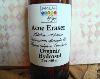Acne Eraser, Organic Hydrosols, Organic Skin Care, Acne, Organic Hydrolat, Fade Scars, Redness, Irritation, Soothes & Balances Skin, Acne