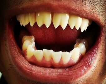 Piranha Vampire Fangs Hand Crafted to Fit Your Teeth