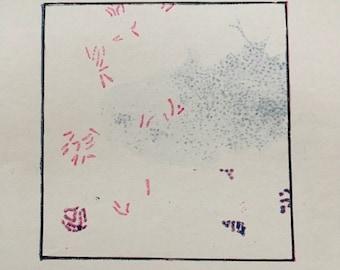 tubercle bacilli tuberculosis 1940s vintage medical illustration