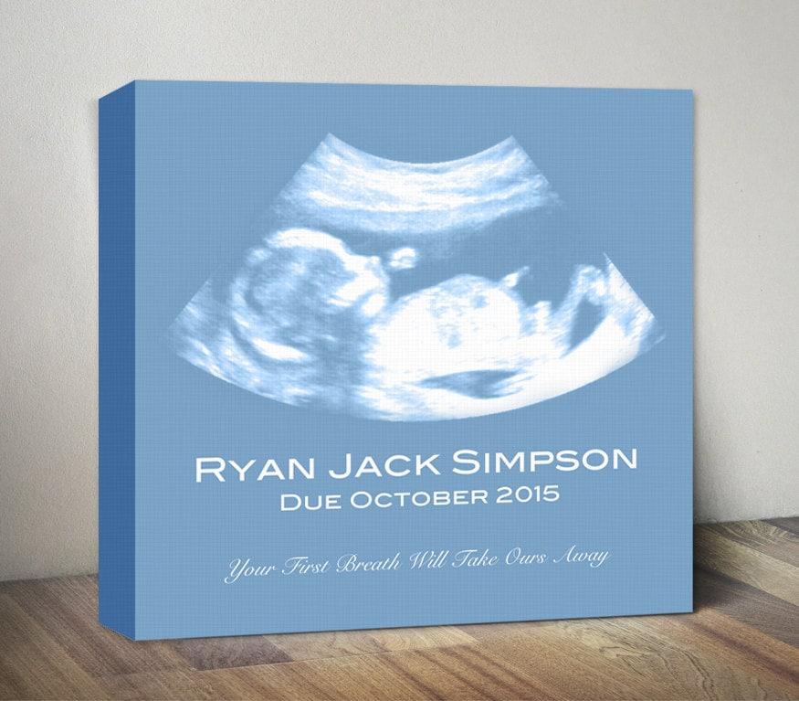 Ultrasound canvas sonogram art print baby shower gift zoom negle Images