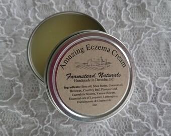 Amazing Eczema Cream, Eczema, Eczema Salve, Eczema Lotion, Psoriasis, Salve, Handmade, Natural, Natural Skincare,Homemade,Lotion,Body Lotion