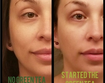 Green Tea Under Eye repair cream for dark circles, puffy eyes and minimizes fine lines! Top Seller! You will love it!