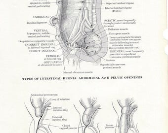 Human Anatomy Hernias Vintage Medical Anatomy Illustration to Frame or for Collage, Scrapbooking and Paper Arts PSS 3239