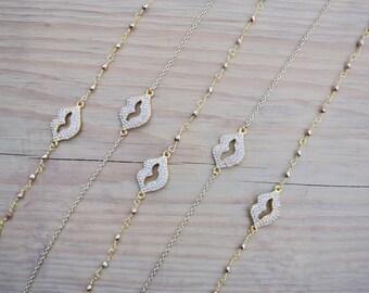 Kiss Choker/Necklace