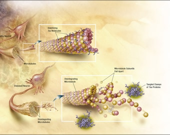 Poster, Many Sizes Available; Diagram Of How Microtubules Desintegrate With Alzheimer'S Disease