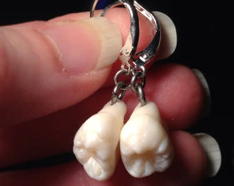 YOUR SUPPLIED TEETH Made Into Sterling Silver Leverback Earrings