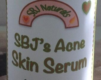 Skin: SBJ's Acne Skin Serum// Lg 2oz // Sm 1oz// Free 1oz refill for first customer order