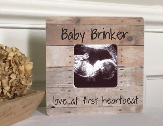 ON SALE Baby Announcement Sonogram Ultrasound Love at First Sight ...
