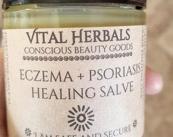 Eczema & Psoriasis salve, organic eczema treatment, dermatitis salve, dermatitis treatment, organic psoriasis treatment, natural eczema