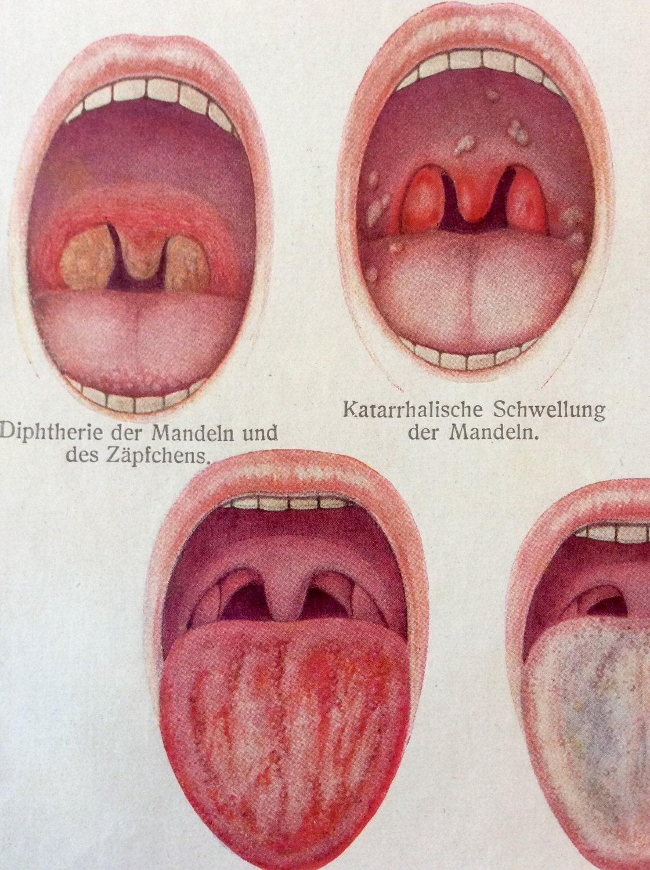 Großzügig Anatomie Eines Tonsillen Fotos - Physiologie Von ...