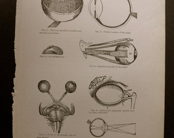 1916 MEDICAL CHART from antique medical book - eye