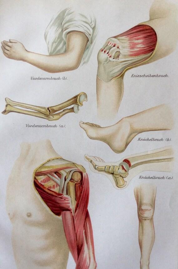 Vintage 1907 alemán músculo hueso fractura cromolitografía