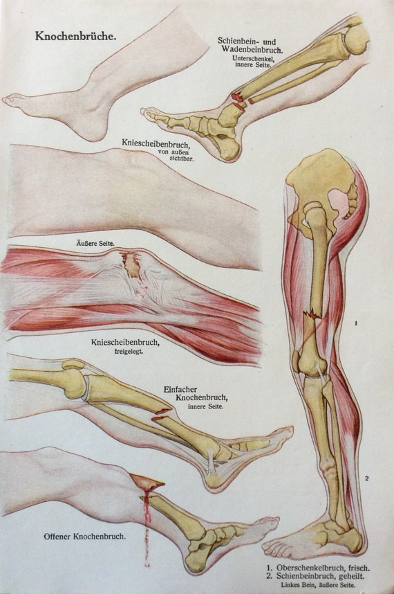 Jahrgang der 1920er Jahre deutsche Medizin Anatomie