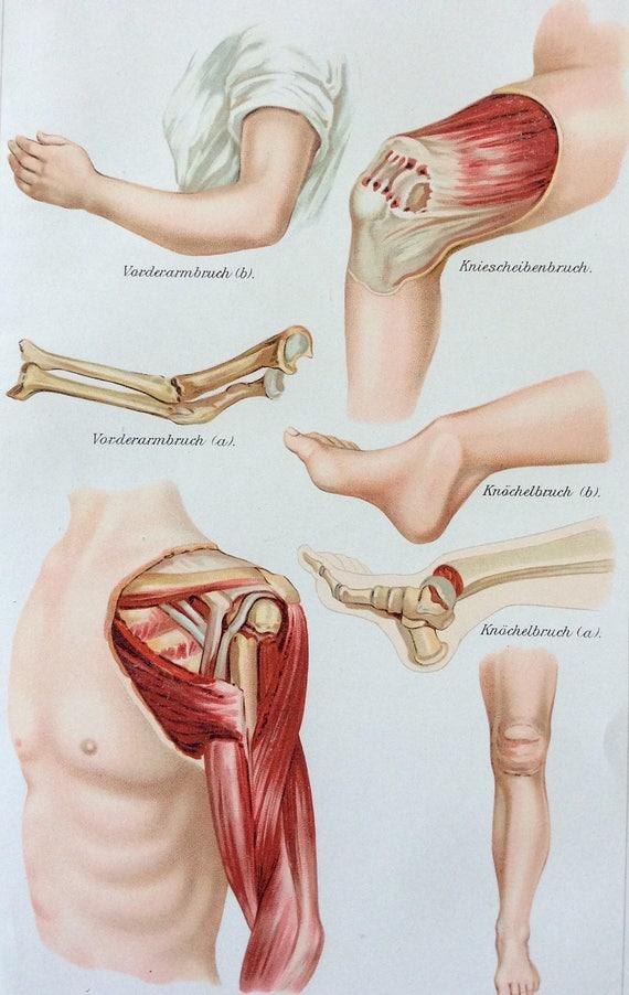 Jahrgang 1907 Deutsche Muskel Knochen FRAKTUR medizinische