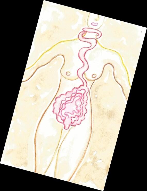 dikke darm verwijderen colitis ulcerosa