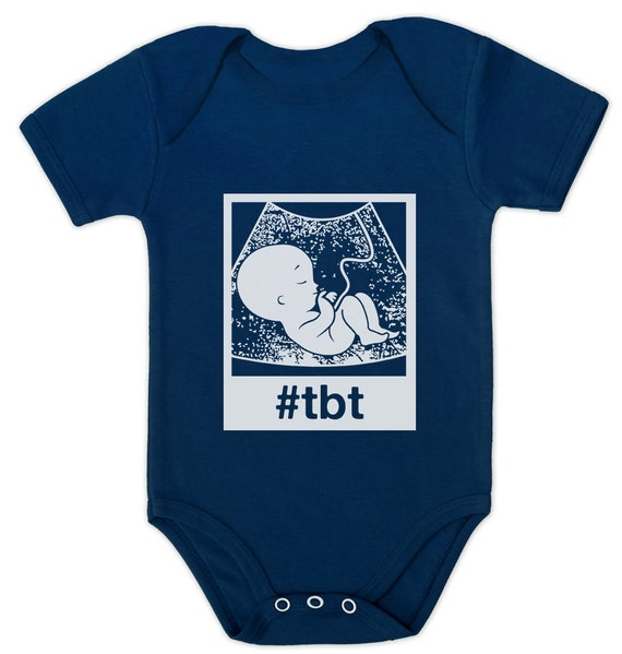 Throwbackthursday Tbt Ultrasound Baby Short Sleeve Onesie