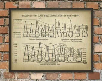 Human Teeth Calcification Print #3, Dentistry, Incisor, Molar, Mouth Anatomy, Human Biology, Dental Student, Dental Practitioner, Surgery