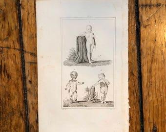 c. 1830 PHYSICAL DEFORMITIES & medical abnormalities print - very rare original antique anatomy engraving - albino and piebald skin defect
