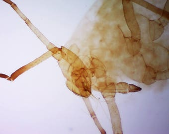 Microscopic Aphid Bug Head 160x Magnification - Aphid under a Microscope Scientific Photo Print - Educational Bug Image Biology