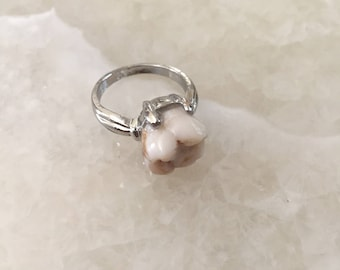 Genuine Human Molar Ring