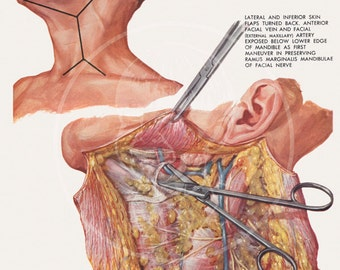 Plate 1: Radical Neck Dissection - 10x14 Giclée Canvas Print of Vintage Surgical Illustration