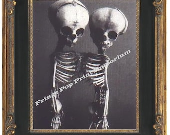 Victorian Siamese Twins Skeleton Art Print 8 x 10 - Anatomical Medical Oddity