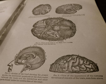 1916 MEDICAL CHART from antique medical book - brain