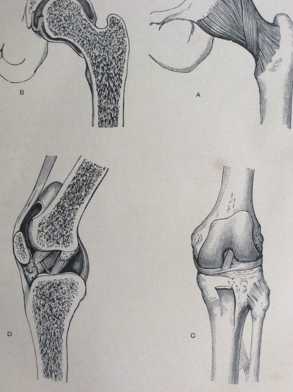 Antiguos de 1890 médico anatomía diagrama rodilla cadera