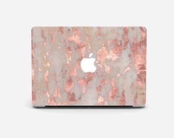 PINK MARBLE Macbook Air 11 case, Macbook Air case, Macbook Air 13 case, Macbook Air 13, Macbook Air 11, Macbook Air cases, Macbook case