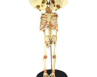 Siamese Twin Conjoined Baby Fetus Plastic Skeleton
