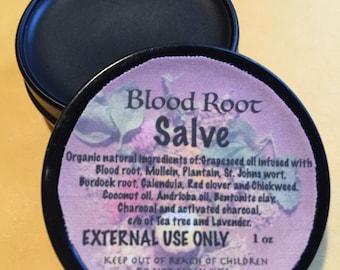 Bloodroot  Salve 1 oz - Organic, Herbal Salve.. No zinc chloride so no burning Safe product- Blood Root Salve