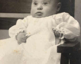 Sweet Down's Syndrome Baby Antique Photo 1 of 2