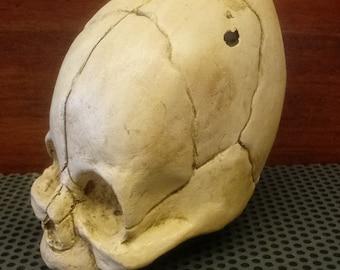 Cone Head Fetal Skull