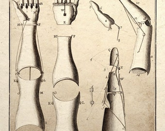Steampunk Art Print Mechanical Arm Medical Patent Design