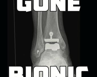 Ankle Replacement - Gone Bionic