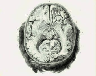 1844 XL Antique Brain Print, Human Skull,  Brain Anatomy Poster Bourgery Medicine Wall Art Curiosity Cabinet