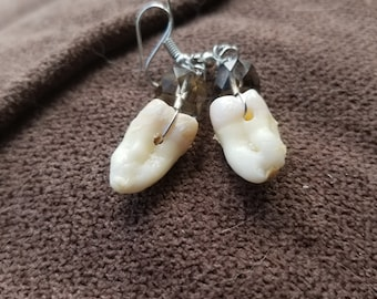 Wisdom Tooth Earrings