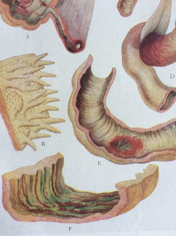 Anatomía francés antiguo Bookplate impresión de 1900 del
