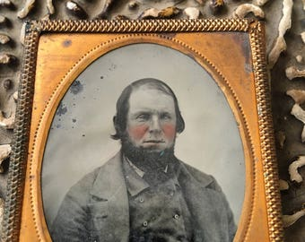 Rosy Cheeks & A Lazy Eye What A Combo Antique Daguerreotype Worn Photo