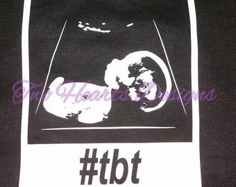 Throwback Thursday Onesie or Tshirt (Please email photo of ultrasound before purchasing the custom option)