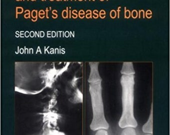 PATHOPHYSIOLOGY and Treatment of Paget's Disease of Bone (2nd Revised edition) by John A Kanis. 1998