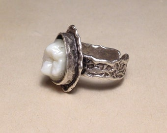 Tooth Fairy Series: Real Human Single Molar Teardrop Setting Adjustable Silver Ring