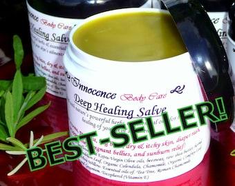 Healing Salve, Organic Herbal Balm: Dry Skin, Eczema, Bug Bites, Rash, Itch Relief, Burns. Powerful 7-Herb Formula. Best-Seller! Ships FREE