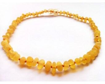 Genuine Raw Baltic Amber Baby Teething Necklace Honey Unpolished