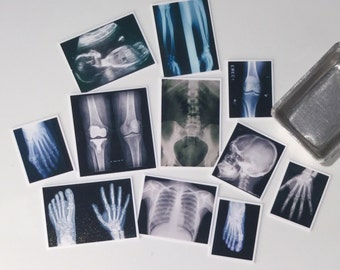 Set of 11, Clear, Photos, X-rays, Dollhouse Miniature, 1/12 scale - 1 inch, medical, anatomy, surgery, medical, Doctors, bones, Study,