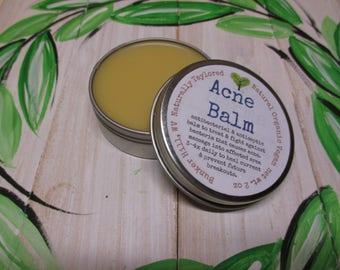 Acne Balm All Natural Acne Balm for Skin Acne Skin Care  All Natural Acne Salve Acne Herbal Acne Drawing Salve Acne Balm Natural Acne