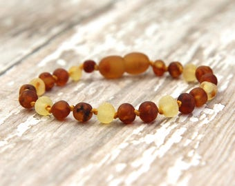 Baltic Amber Teething Anklet, unpolished amber bracelet, natural pain relief, raw amber jewelry, beaded bracelet
