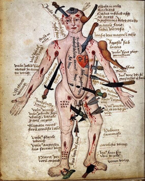 Vintage Medical Illustration Wound Man Antique