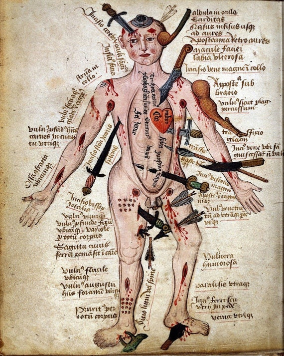 Vintage Medical Illustration Wound Man Antique Anatomical Diagram